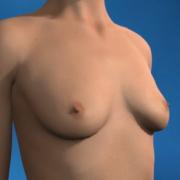 Vorbereitung auf die Brustvergrößerung