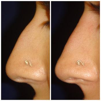 Vorher-Nachher-Vergleich einer Nasenkorrektur mit Filler