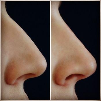 Vergleich einer Nasenkorrektur mit Filler bei einer 23jährigen Patientin
