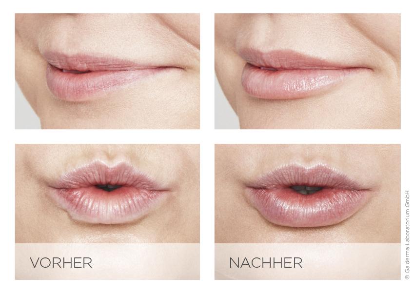 Lippenvolumen mit Fillern erzeugen