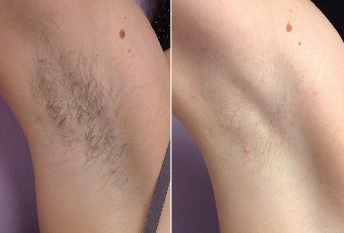 Vergleich der Haarentfernung in der Achsel nach vier Monaten und drei Behandlungen.