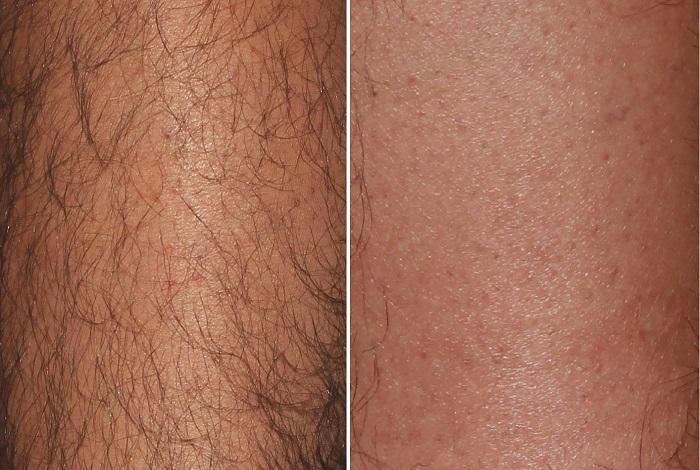 Vergleich der Haarentfernung am Bein nach sechs Monaten und drei Behandlungen