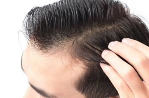 Regelmäßige PRP Behandlungen erhalten volles und kräftiges Haar
